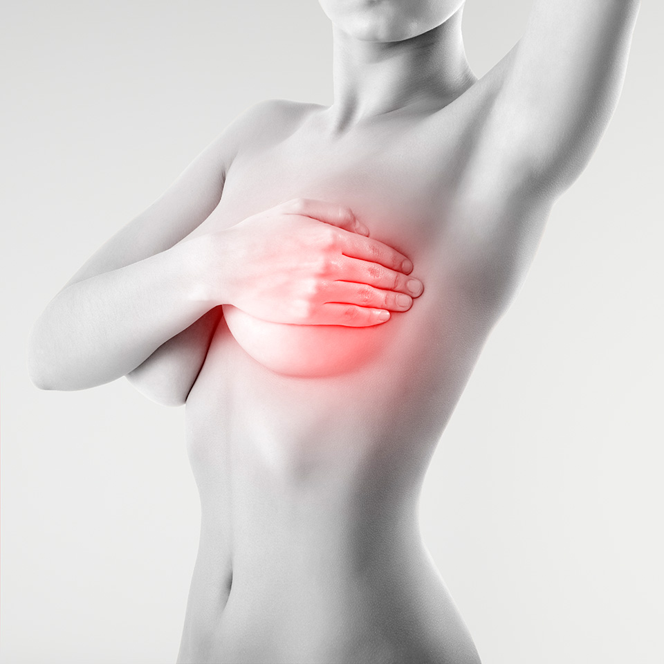 Bulto en el seno: Cómo descubrir si es benigno o