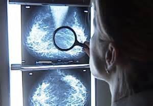 mamografia placa